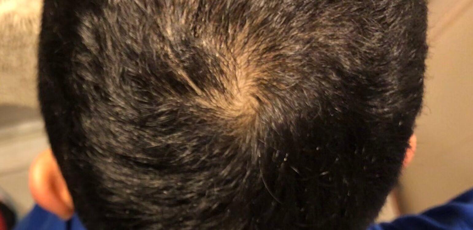 現在の頭皮環境。まだまだ改善が必要。